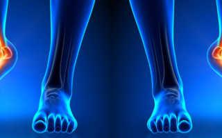 Как быстро восстановить растяжение мышц. Растяжение мышц: лечение и восстановление. Как восстановиться после травмы
