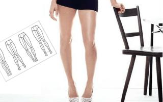 Исправление кривизны ног или как выпрямить кривые ноги? Как сделать кривые ноги более ровными