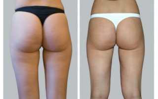 Как сильно похудеть в ногах и попе. Как похудеть в попе? Только проверенные способы! Заходы на возвышенную платформу