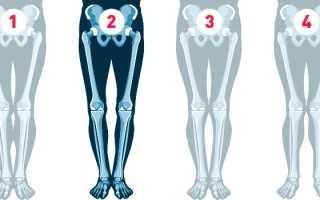 О образные ноги у взрослых. Исправление кривизны ног: современные методы и способы. Восстановление биомеханики коленных суставов