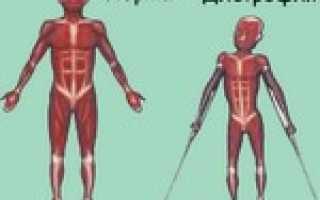 Дистрофия мышц скелетной мускулатуры и ее причины. Дистрофия мышц: симптомы и причины развития болезни. Мышечная дистрофия Дюшенна и мышечная дистрофия Беккера