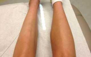 Мышечная атрофия. Как лечить атрофию мышц