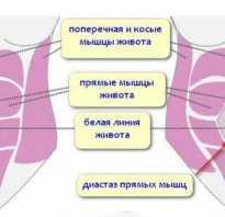 Расхождение мышц живота при беременности что делать. Расхождение мышц живота: признаки, стадии и методы борьбы. У кого бывает диастаз