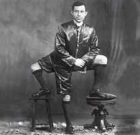 3 нога где. Франческо Лентини, человек с тремя ногами (фото)