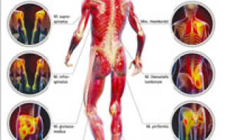 Боль в мышцах долго не проходит. Боль в мышцах без физических нагрузок. Виды мышечной боли