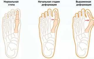 Ровные ноги упражнения. Упражнения при вальгусной деформации. Упражнения для укрепления Х-образных ног