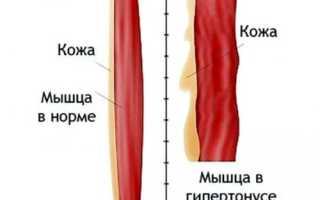 Тонус мышц ног у взрослых. Как лечить гипертонус у младенца. Причины гипертонуса у взрослых
