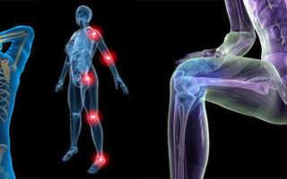 Как укрепить связки и сухожилия рук. Как укрепить связки и сухожилия? Секрет силы. Препараты для укрепления связок и суставов